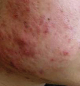 Acne Type1 Before Treatment . Sharplight