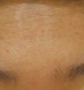 Acne Treatment - Forehead After 8 Month Treatment . Sharplight