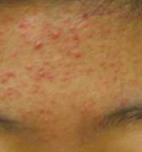 Acne Treatment - Forehead Before Treatment . Sharplight