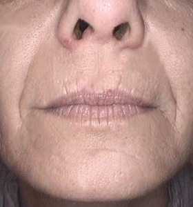 Skin Rejuvenation Treatment - Lower Face After 4 Treatments . Sharplight