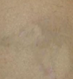 Tattoo Removal Treatment- Sagittarius After 5 Treatments . Sharplight