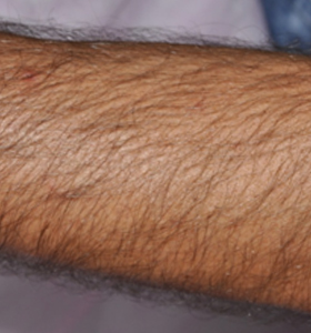 Hair Removal Treatment- Arm Before - Sharplight