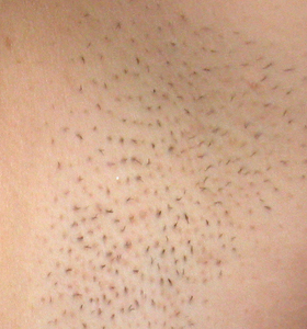 Hair Removal Treatment - Armpits Before 2 Treatment - Sharplight