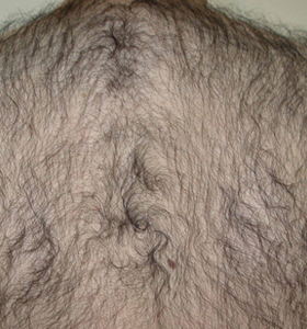 Hair Removal Treatment - A Man's Back .Befor 6 Treatments - Sharplight