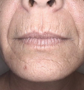 Skin Rejuvenation Treatment - Lower Face - Before Treatment . Sharplight