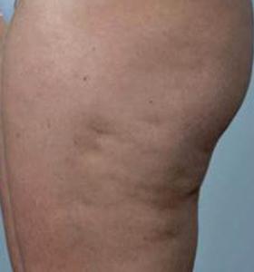 Body Contouring Treatment - Hips Before . Sharplight