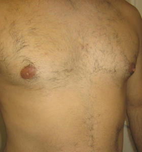 Hair Removal Treatment - Chest Afte 3 Treatments - Sharplight