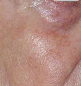 Vascular Lesions Female Face After 2 Treatment . Sharplight