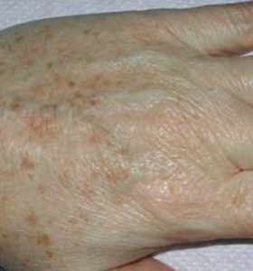 Pigmented Lesions Treatment- Hands Before Treatment . Sharplight