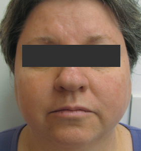 Vascular Lesions Treatment For Middle Aged Woman. After 4 Treatments . Sharplight