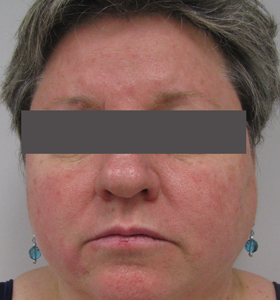 Vascular Lesions Treatment For Middle Aged Woman- Before . Sharplight