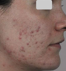 Acne Treatment For Teenage Girl Before Treatment . Sharplight