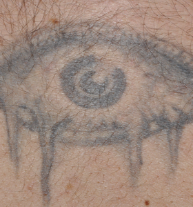 Tattoo Removal Treatment- Eye Before Treatment . Sharplight