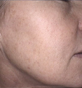 Skin Rejuvenation Cheek After 2 Treatments . Sharplight