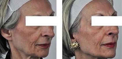 Treatment of aging skin using the SharpLight OmniMax multiple modality platform