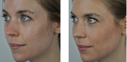 """""""Stacked"""" Modality for Acne Vulgaris and Post Acne Vulgaris Scarring using SharpLight's OmniMax Technology"""