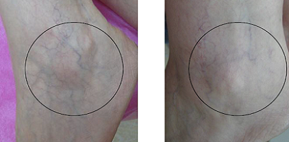 SLT Long Pulse Nd: YAG Laser for the Treatment of Leg Veins and Benign Vascular Lesions