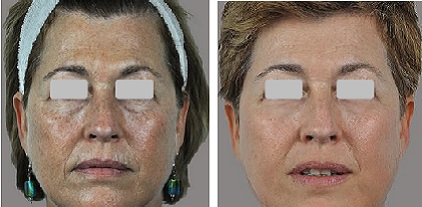 "Treatment of aging skin using the SharpLight OmniMax ""Stacked"" multiple modality platform"