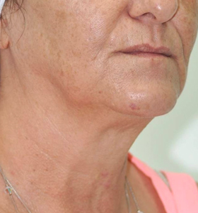 Skin Rejuvenation Lady With Pink T-Shirt After 6 Treatments . Sharplight