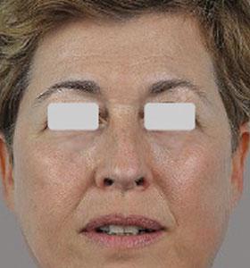 Skin Rejuvenation For Middle Age Women - After 4 Treatments . Sharplight