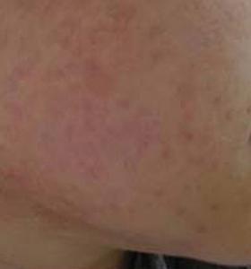 Acne Treatment - Lower cheek After 8 Treatments . Sharplight