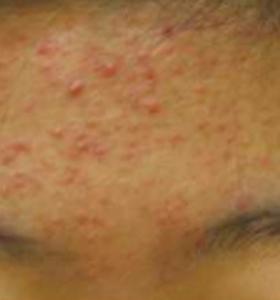 Acne Treatment - Forehead Before Treatment . Sharplight