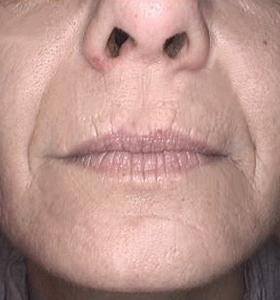 Skin Rejuvenation Treatment - Lower Face After 4 Treatments . Sharplight