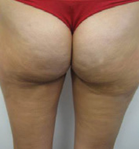 Body Contouring Treatment- Buttocks and thighs After 8 Treatments . Sharplight