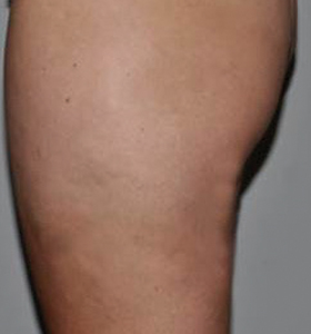 Body Contouring Treatment- Thigh After 8 Treatments. Sharplight