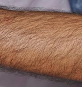 Hair Removal Treatment- Arm Before - Sharplight