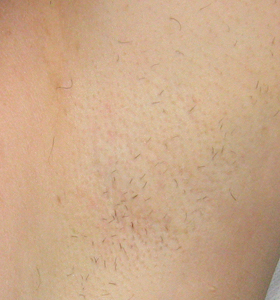 Hair Removal Treatment - Armpits After 2 Treatment - Sharplight