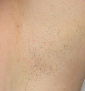 Hair Removal Treatment - Armpits After 2 Treatment - Sharplight