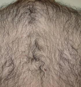 Hair Removal Treatment - A Man's Back .Befor 6 Treatments - Sharplight