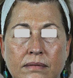 Skin Rejuvenation Treatment - Full Face Before . Sharplight