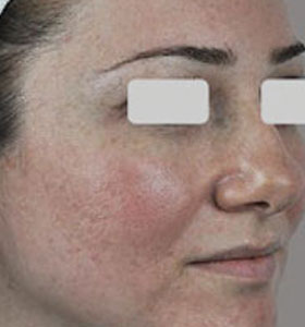 Vascular Lesions Treatment For Young Woman. Before Treatment . Sharplight