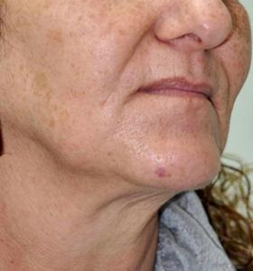 Skin Rejuvenation Treatment- Lady With Pink T-Shirt Before Treatment . Sharplight