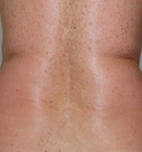 Body Contouring Treatment- Back Before Treatment . Sharplight