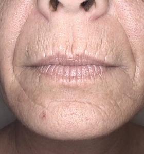 Skin Rejuvenation Treatment - Lower Face - Before Treatment . Sharplight
