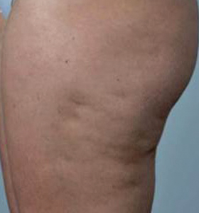Body Contouring Treatment - Hips Before . Sharplight