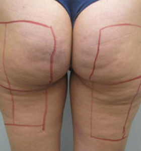 Body Contouring Treatment - Back Thigh And Buttocks Before . Sharplight