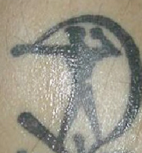 Tattoo Removal Treatment- Sagittarius Before Treatment . Sharplight