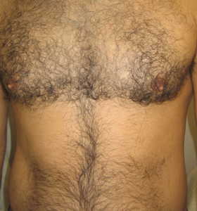 Hair Removal Treatment - A Man's Chest. Before Treatment - Sharplight