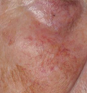 Vascular Lesions- Female Face Before Treatment . Sharplight