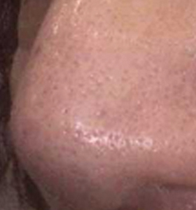 Skin Rejuvenation Treatment Male Nose After 3 Monthly . Sharplight