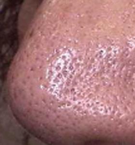 Skin Rejuvenation Treatment - Male Nose Before . Sharplight