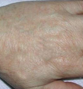 Pigmented Lesions Treatment - Hands After 2 Treatment . Sharplight