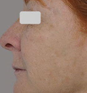 Skin Rejuvenation Treatment For Middle Aged Woman After Treatment . Sharplight