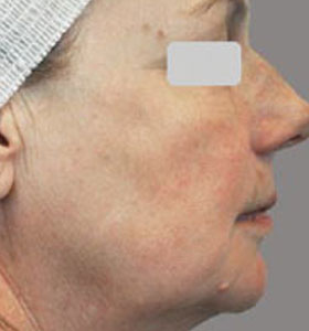 Skin Rejuvenation Treatment For Older Women After 4 Treatments. Sharplight