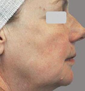 Skin Rejuvenation Treatment For Older Women After 4 Treatments. Sharplight