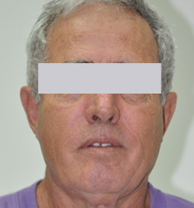 Skin Rejuvenation Treatment -Men- After . Sharplight